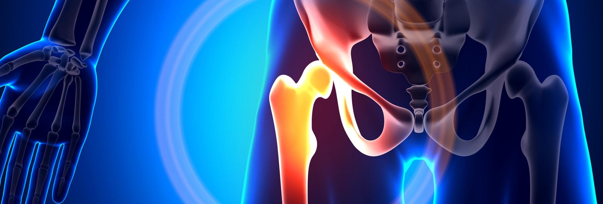 bone-healths-slide