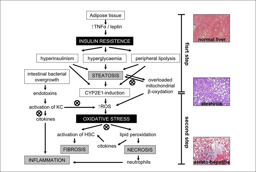 Pathogenic mechanisms in the histological progression of NAFLD and the site of action of sylimarin